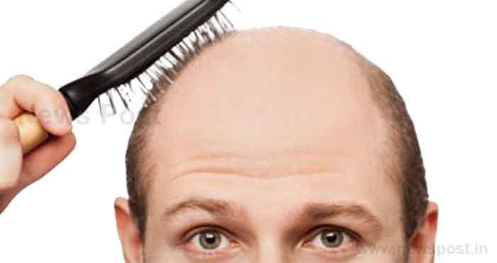 regrow-hair-naturally-in-3-weeks